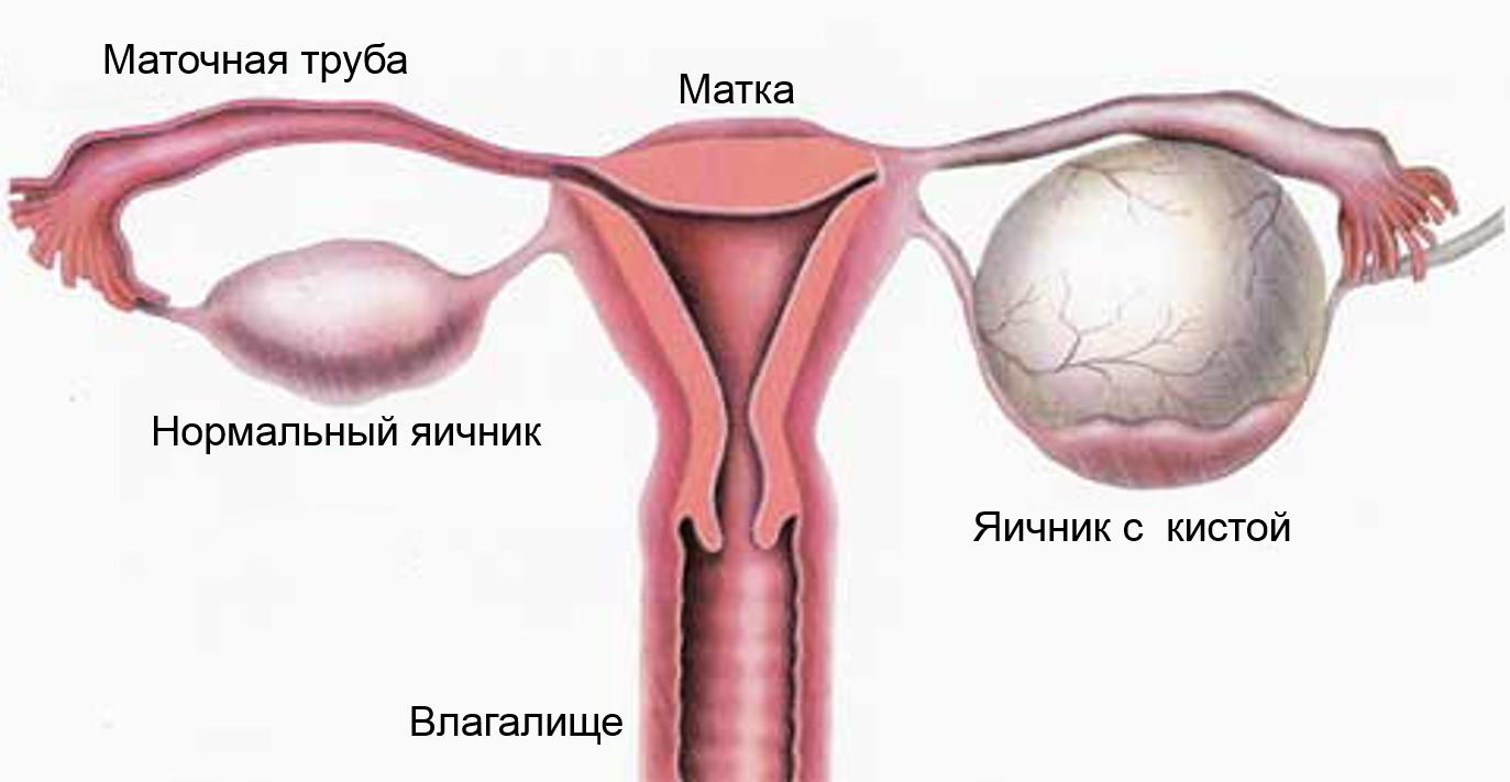 гиперплазия эндометрия лечение дюфастоном схема